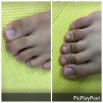 足の指の使い方うまくできていますか?
